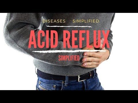 Acid Reflux Simplified 6