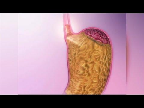 Acid Reflux Natural Remedies 4