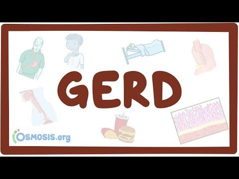 Gastro-esophageal reflux disease (GERD) - causes, symptoms, diagnosis, treatment, pathology 1
