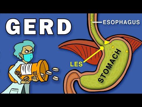 Gastroesophageal Reflux Disease (GERD) 6