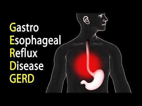 GERD - Gastroesophageal Reflux Disease or Gastric Reflux, Animation. 1
