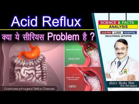 ACID REFLUX क्या ये सीरियस प्रॉब्लम है ? || WHAT ARE THE DIFFERENCES BETWEEN ACID REFLUX AND GERD 1