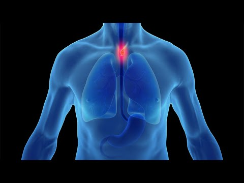 Heartburn, Reflux and GERD: Preventing the Progression to Esophageal Cancer 4