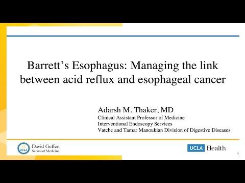 Barrett's Esophagus: Link Between Acid Reflux & Esophageal Cancer   Adarsh M. Thaker, MD   UCLA 5